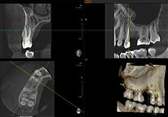 OrtoDent - endodoncija