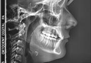 OrtoDent - profilni cefalogram